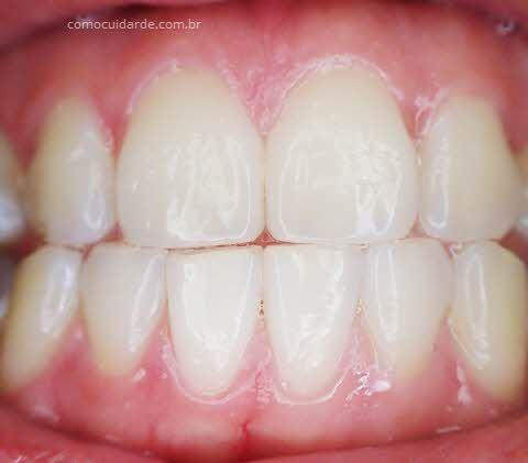 Gengiva e dentes, como cuidar da gengivite