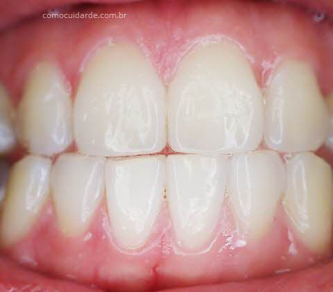 Gengiva e dentes, como cuidar da gengiva inflamada